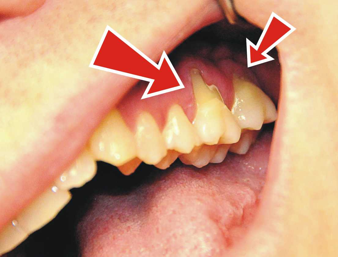 how to keep hole in tooth clean